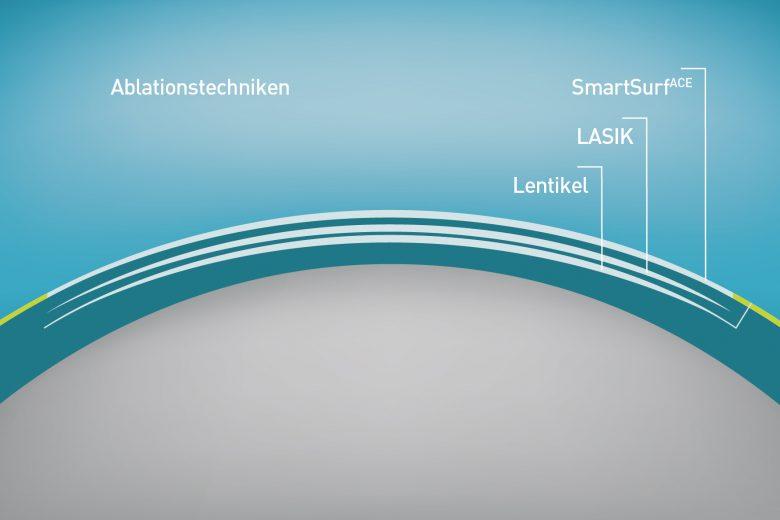 Die modernsten Laser Verfahren im Vergleich