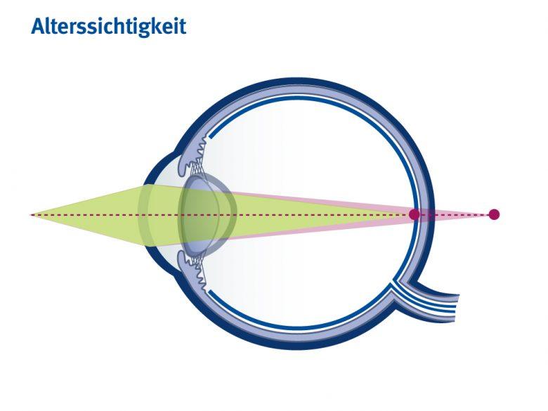 Wenn die Linse nicht mehr elastisch genug ist, verkrümmt sie sich nicht mehr. Der Ältere kann ohne Brille seine Speisekarte nicht mehr lesen
