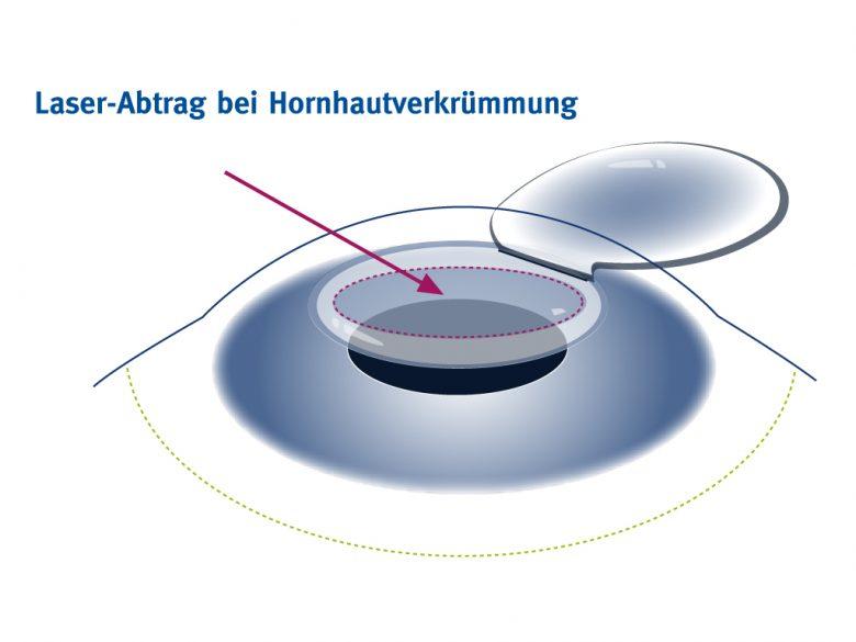Hornhautverkrümmung lasern mit einem ellipsoiden Laserabtrag