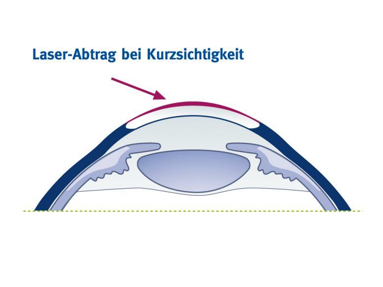 Laserabtrag bei Kurzsichtigkeit